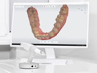 3D Scanner, Azarko Dental Group