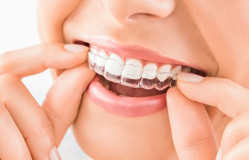 Orthodontics, Azarko Dental Group
